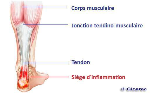 schéma-tendon